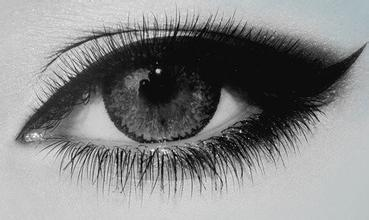 无锡整双眼皮手术好吗